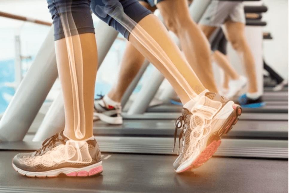 tapis de course pour renforcer les os